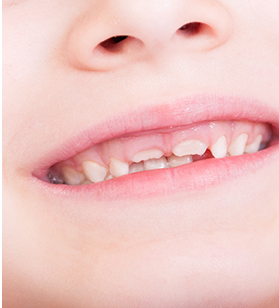 New Patients Article image-child's smile